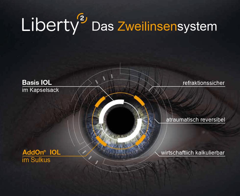 frontale Ansicht auf ein Auge mit den 3 Vorteilen vom Liberty² System