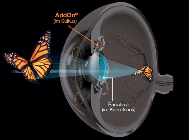 Auge im Querschnitt mit eingesetzter Basislinse und AddOn Linse